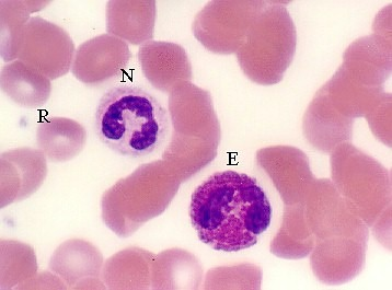 neutrophil or eosinophil, nether are like a mast cell