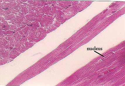 cardiac muscle identified by central nucleus and fibers that branch around the nucleus.  Also, identify by striations.