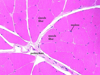 Skeletal muscle---peripheral nucleus